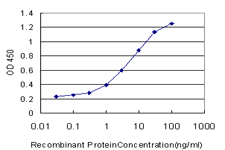 E - TIMM9 Antibody (monoclonal) (M01) AT4240a