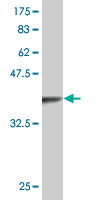 WB - TLX3 Antibody (monoclonal) (M02) AT4261a