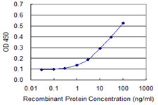 E - TNFRSF10B Antibody (monoclonal) (M01) AT4271a