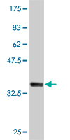 WB - TNFRSF10B Antibody (monoclonal) (M01) AT4271a