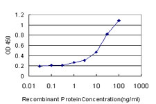 E - TNFRSF6B Antibody (monoclonal) (M02) AT4281a