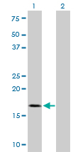WB - TOMM22 Antibody (monoclonal) (M01) AT4302a