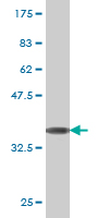 WB - TOP2A Antibody (monoclonal) (M01) AT4305a