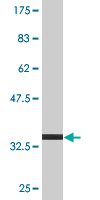 WB - TPD52 Antibody (monoclonal) (M01) AT4317a