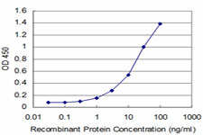 E - TPMT Antibody (monoclonal) (M02) AT4321a