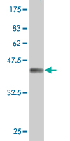 WB - TPT1 Antibody (monoclonal) (M03) AT4328a