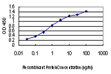 E - TTN Antibody (monoclonal) (M06) AT4393a