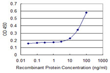 E - TTYH1 Antibody (monoclonal) (M04) AT4396a