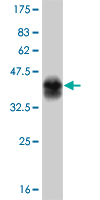 WB - TYK2 Antibody (monoclonal) (M01) AT4423a
