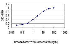 E - TYMS Antibody (monoclonal) (M01) AT4425a