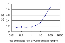 E - UBE2D2 Antibody (monoclonal) (M02) AT4432a