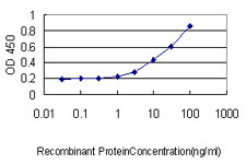 E - UBE2M Antibody (monoclonal) (M01) AT4440a