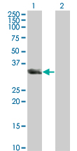 WB - UNC119 Antibody (monoclonal) (M01) AT4469a