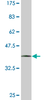 WB - UNC13D Antibody (monoclonal) (M05) AT4470a