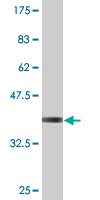 WB - WBSCR1 Antibody (monoclonal) (M07) AT4528a