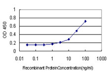 E - WDR4 Antibody (monoclonal) (M01) AT4531a