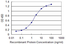 E - WDR79 Antibody (monoclonal) (M04) AT4537a