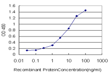 E - ZNF174 Antibody (monoclonal) (M01) AT4592a