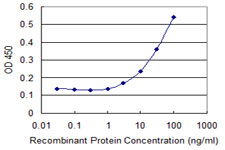 E - ZNF18 Antibody (monoclonal) (M01) AT4593a
