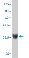 WB - ZNF207 Antibody (monoclonal) (M05) AT4601a