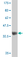WB - ZNF207 Antibody (monoclonal) (M08) AT4604a