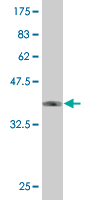WB - ZNF213 Antibody (monoclonal) (M02) AT4608a