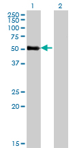 WB - ZNF232 Antibody (monoclonal) (M06) AT4611a