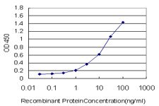 E - ZNF263 Antibody (monoclonal) (M02) AT4615a