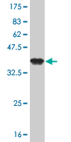 WB - ZNF263 Antibody (monoclonal) (M02) AT4615a