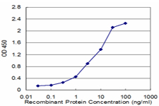 E - ZNF265 Antibody (monoclonal) (M02) AT4618a