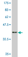 WB - ZNF3 Antibody (monoclonal) (M08) AT4624a