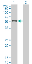 WB - ZNF38 Antibody (monoclonal) (M18) AT4632a