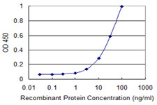 E - ZNF396 Antibody (monoclonal) (M01) AT4635a