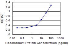 E - ZNF44 Antibody (monoclonal) (M01) AT4637a