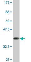 WB - ZNF44 Antibody (monoclonal) (M01) AT4637a