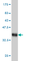 WB - ZNF622 Antibody (monoclonal) (M02) AT4642a