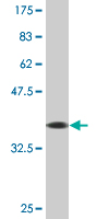 WB - ZNF71 Antibody (monoclonal) (M01) AT4644a