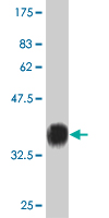 WB - ZNF92 Antibody (monoclonal) (M01) AT4646a