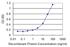 E - ZYX Antibody (monoclonal) (M02) AT4654a