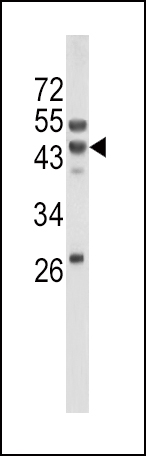 WB - WNT10B Antibody (Center) AP6595b