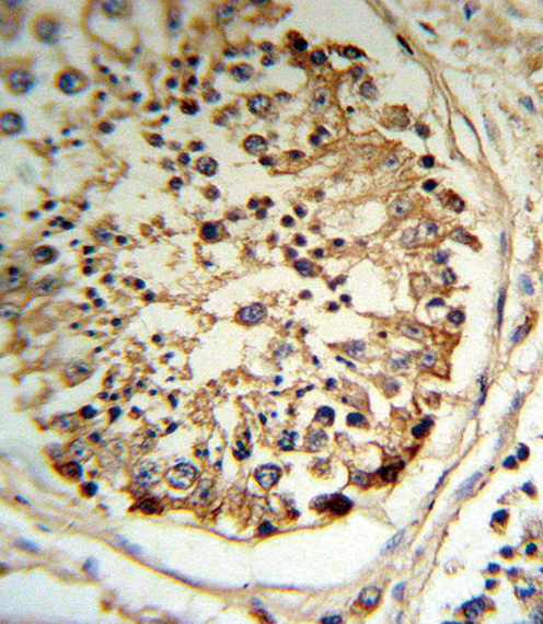 IHC-P - TPA Antibody (Center) AP6778C