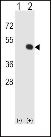 WB - HLA-E Antibody (Center) AP8517C