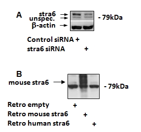 WB - Goat Anti-STRA6 (mouse, rat) Antibody AF2045a