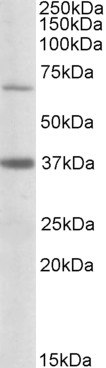 WB - Goat Anti-CPT2 (aa406-418) Antibody AF2220a