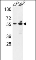 WB - G6PD Antibody (Center) AP5094c