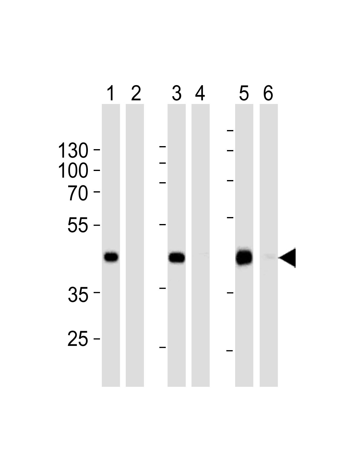 WB - STEA2 Antibody (Center) AP5583c
