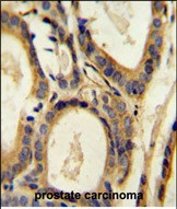 IHC-P - CCL4 Antibody (Center) AP10172B