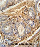 IHC-P - PCOTH Antibody (Center) AP10641c