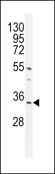 WB - CR025 Antibody  (Center) AP11006c