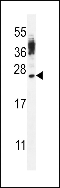 WB - CT45A4/CT45A3/CT45A2/CT45A1/CT45A6 Antibody (Center) AP12131c